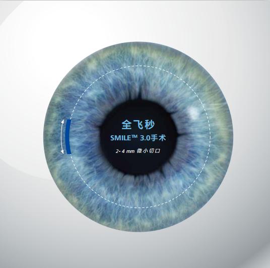 全飞秒激光近视手术可靠吗?足够安全吗?