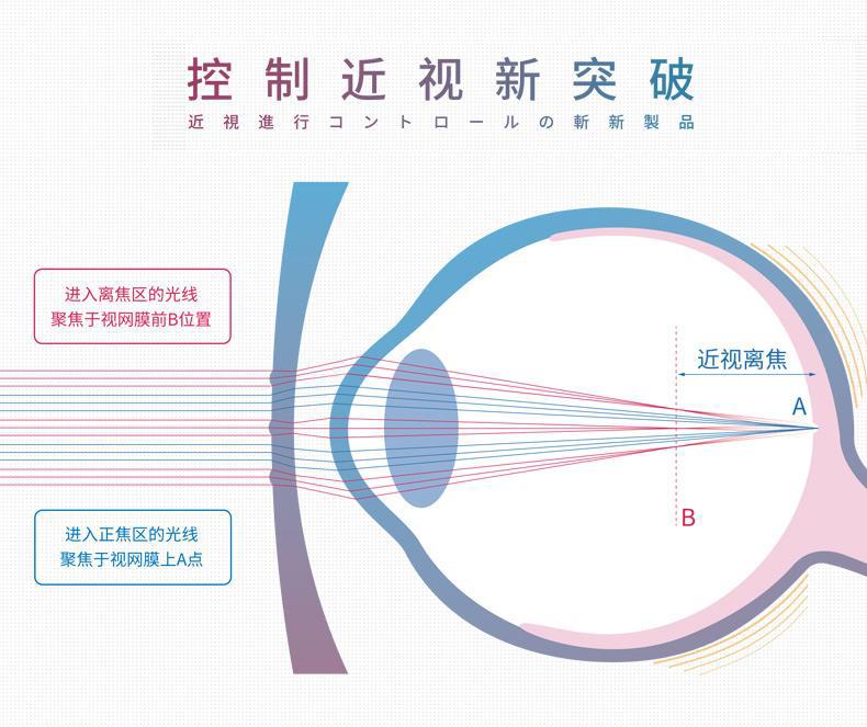 新乐学离焦镜片有什么优势?