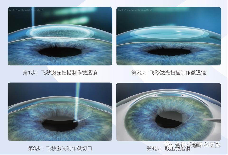 德国蔡司新一代全飞秒近视手术设备落户合肥沃瑞眼科医院!