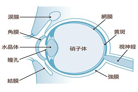 眼睛玻璃体出血怎么治?