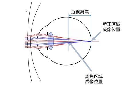 周边离焦镜片原理是什么?