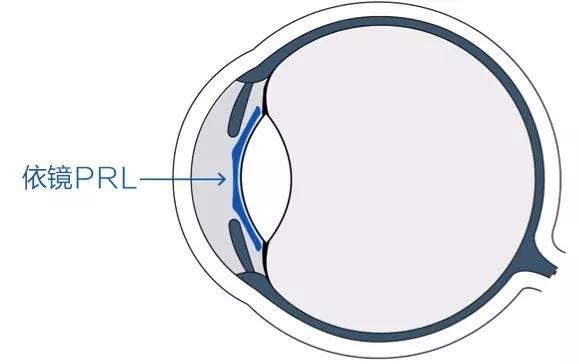 悬浮镜治疗近视价格