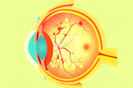 视网膜脱离和高度近视的那些事儿!