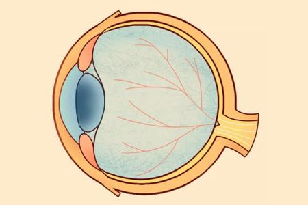 4种周边视网膜变性你知道多少?