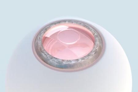 使用PRL晶体植入术有哪些弊端?