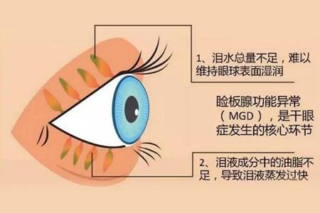 什么是干眼SPA?治疗流程有哪些?