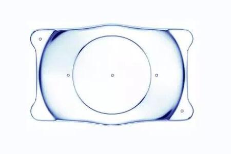 ICL人工晶体植入术的优势是什么?