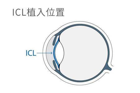 超高近视能做ICL手术吗?