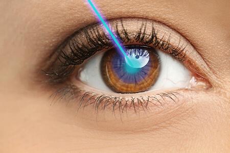近视眼激光手术全飞秒前期为什么要做检查?