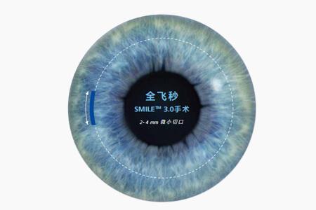 全飞秒近视眼激光手术流程案例