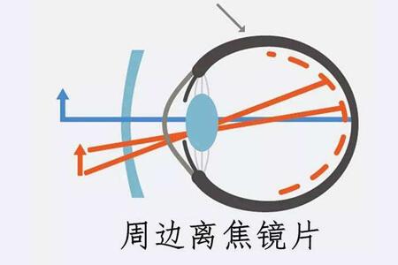 1分钟知晓:离焦镜片和环焦镜片的区别