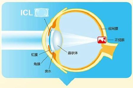 ICL人工晶体植入术的价钱是多少?