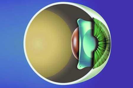 高度近视使用晶体植入术怎么样?