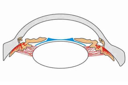 PRL晶体植入术有哪些危害性?