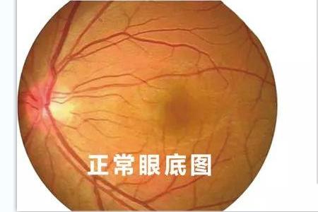沃瑞眼科为您解读全飞秒近视手术的原理是怎样的?