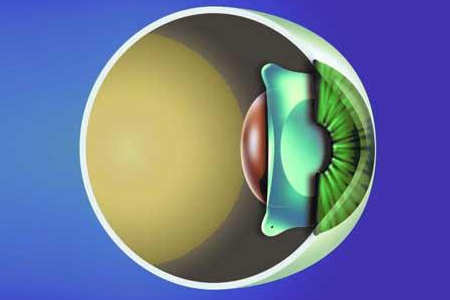 请问现在安徽省哪里有做眼部晶体植入手术的?