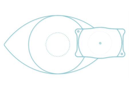 ICL术后眼压多少正常?