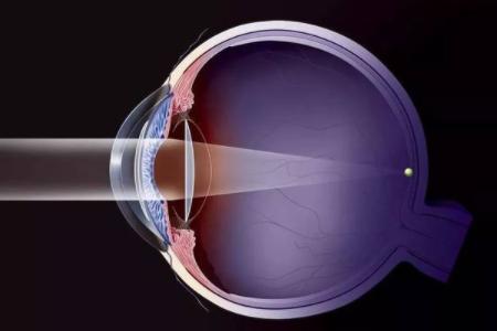 全飞秒近视手术和半飞秒近视手术的区别有哪些?