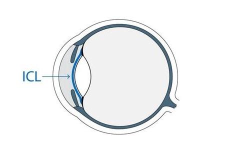 做ICL晶体植入术矫正视力是否是好的选择?有哪些利弊?