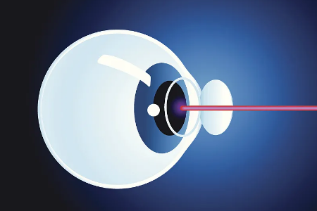 全飞秒治疗近视需要注意什么呢?