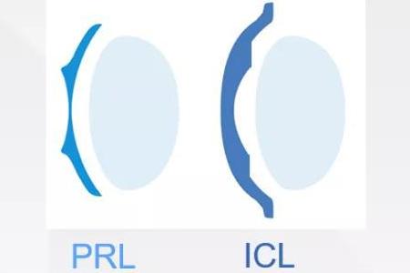 PRL晶体植入与ICL晶体植的区别体现