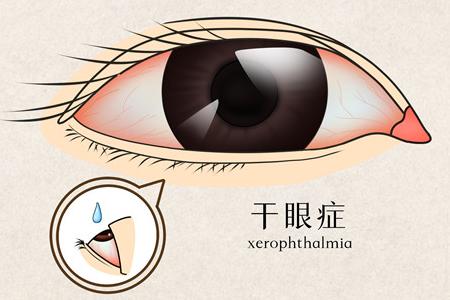 干眼症可以被治愈吗?