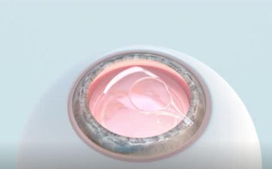 近视2000度应该选择人工晶体植入嘛?