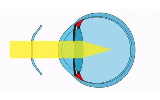 儿童戴OK镜总是揉眼睛,怎样避免孩子揉眼睛呢?