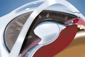 ICL人工晶体植入术
