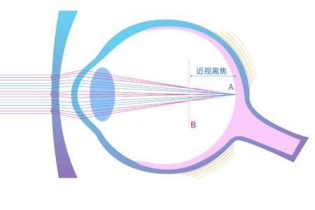 离焦镜眼镜是什么?有什么作用?