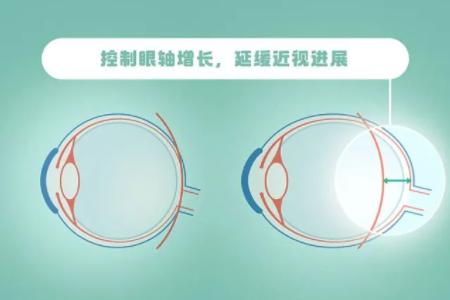 儿童智能近视眼镜能控制视力增长嘛?
