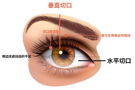 ICL手术时该选择水平切口还是垂直切口?